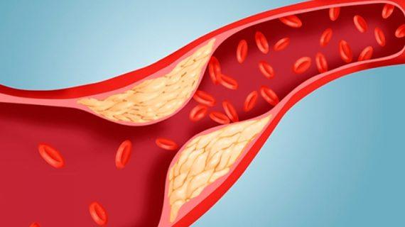 cara mengatasi kolesterol