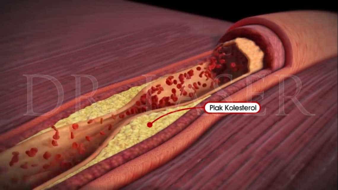 plak kolesterol